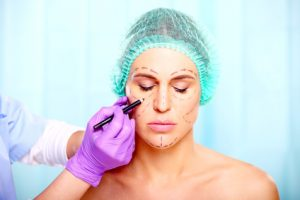 Surgeon marking on face of beautiful woman, plastic surgery